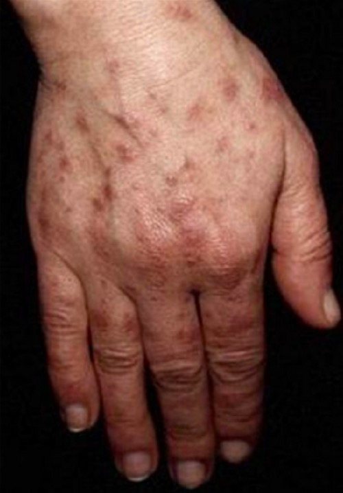Photosensitive lesions on hand