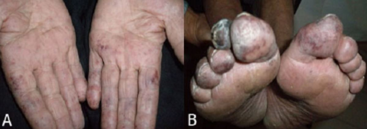 Physical findings of essential thrombocythemia