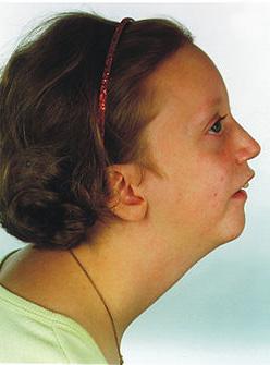 Pitt Rogers Danks Syndrome