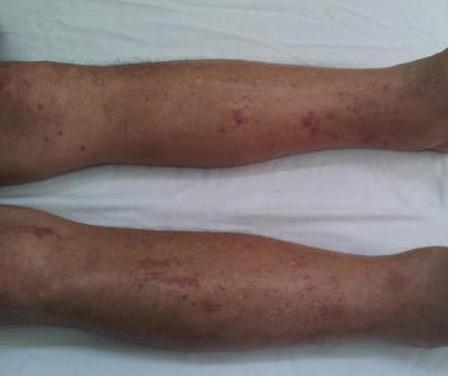 Pitting edema on legs