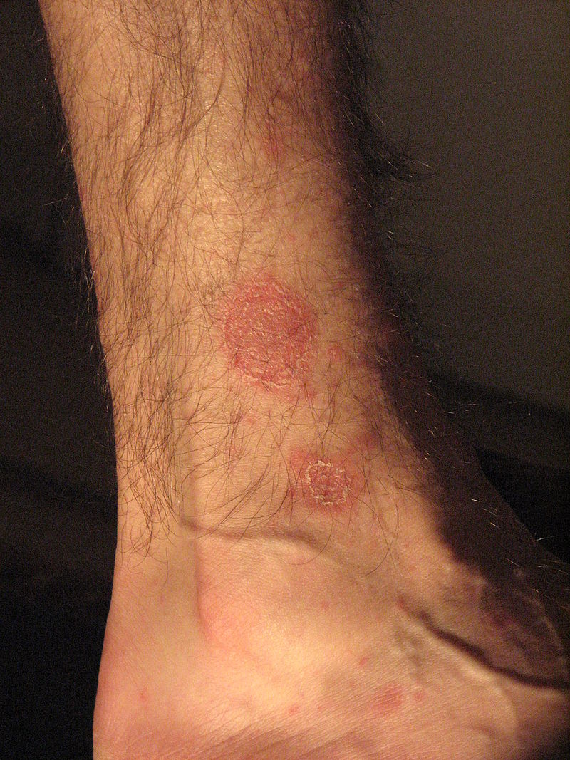 Pityriasis rosea on hand