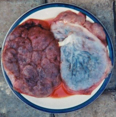 Placenta maternal and fetal side