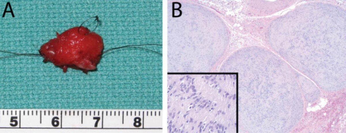 Plexiform cellular schwannoma