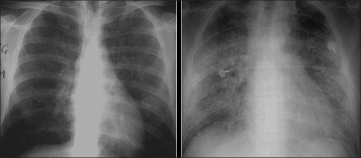 Pneumocystis carinii pneumonia CXR