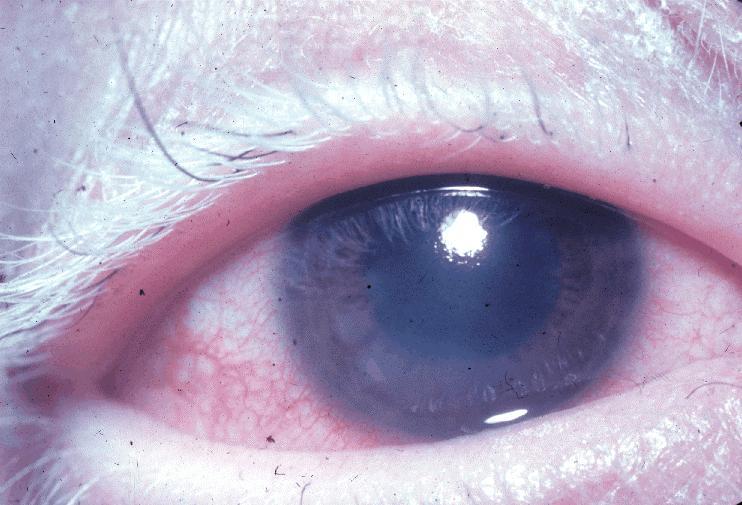 Poliosis