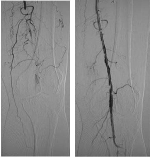 Popliteal arterial long occlusion case
