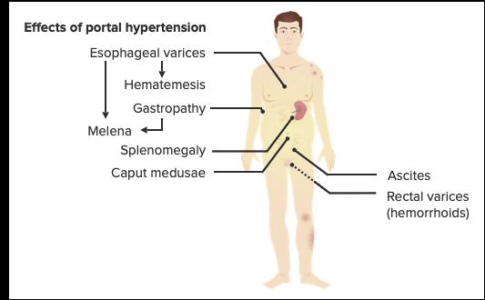 Portal hypertension cirrhosis