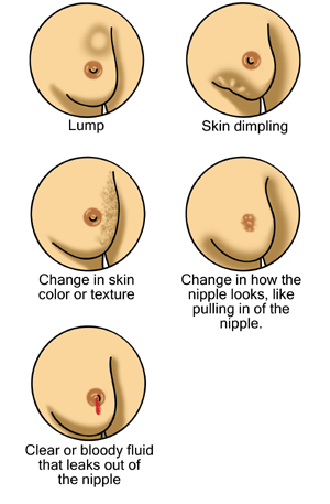 Possible signs of breast cancer