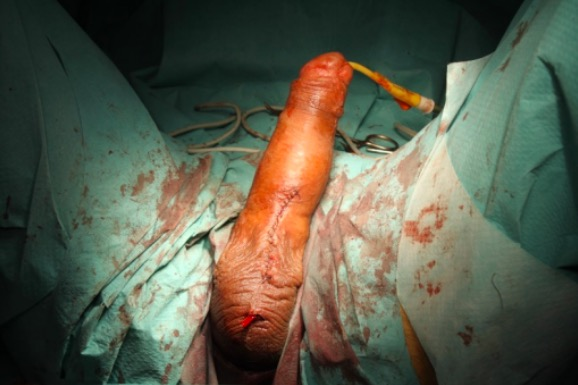 Post operative result after implantation of semirigid prosthesis