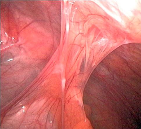 Post-surgery adhesion SBO