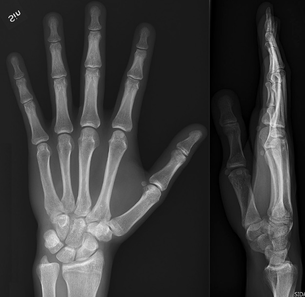 Posteroanterior (left) and lateral (right) projections of a normal left hand and wrist