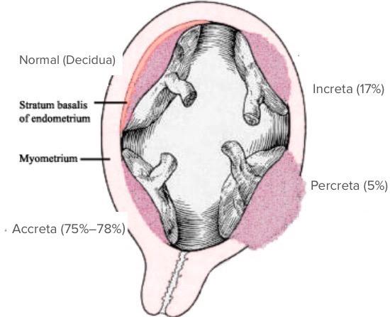 Postpartum hemrrhage placenta