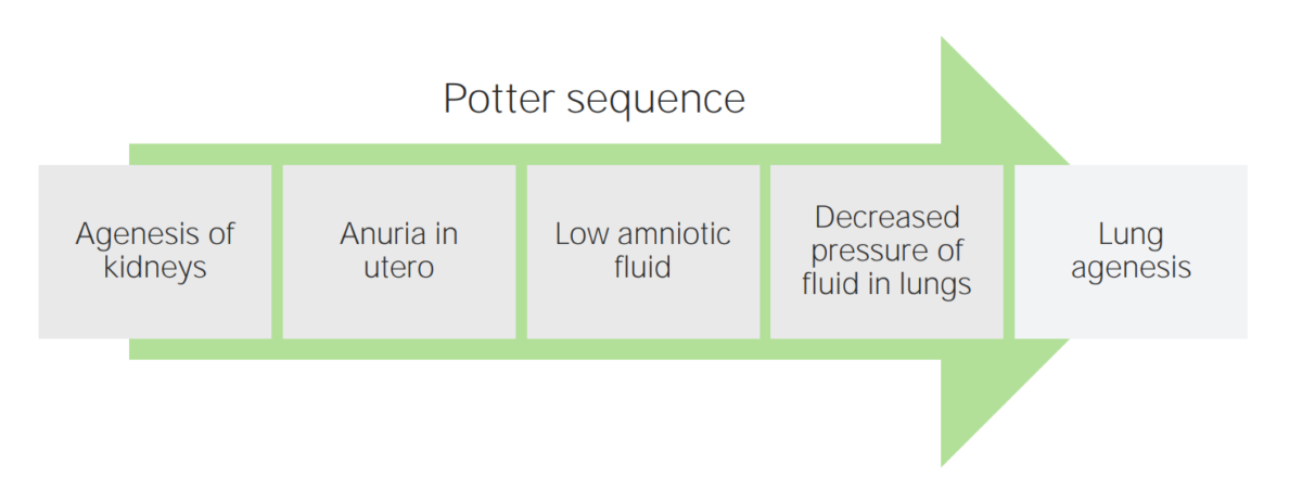 Potter sequence diagramm
