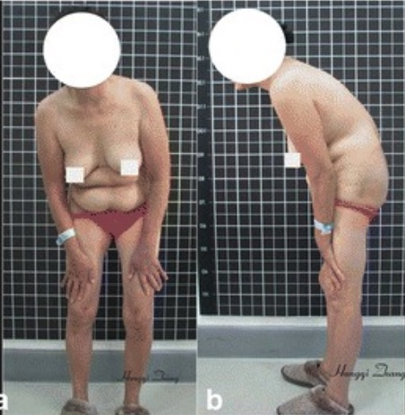 Preoperative imaging findings of a 47-year-old female patient with ankylosing spondylitis