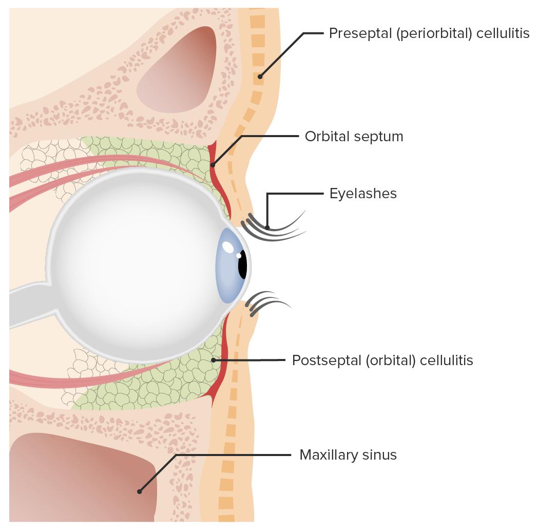 Preseptal and orbital cellulitis