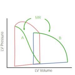 Pressure loop mitral regurgitation