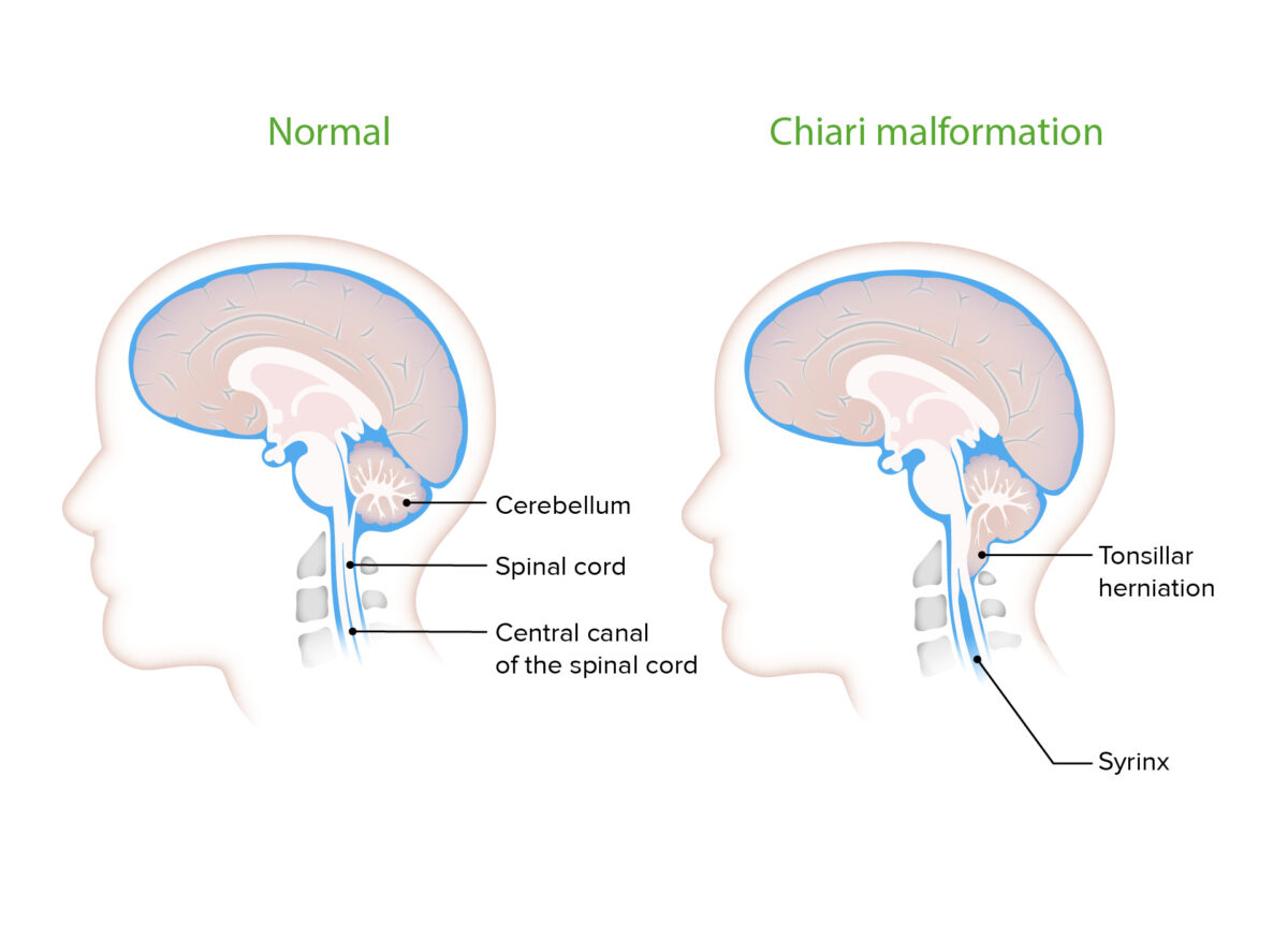 Pressure on the CNS due to Chiari malformation