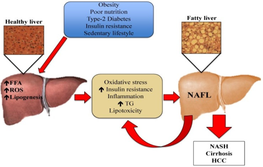 Prevention and Treatment of Non-Alcoholic Fatty Liver Disease