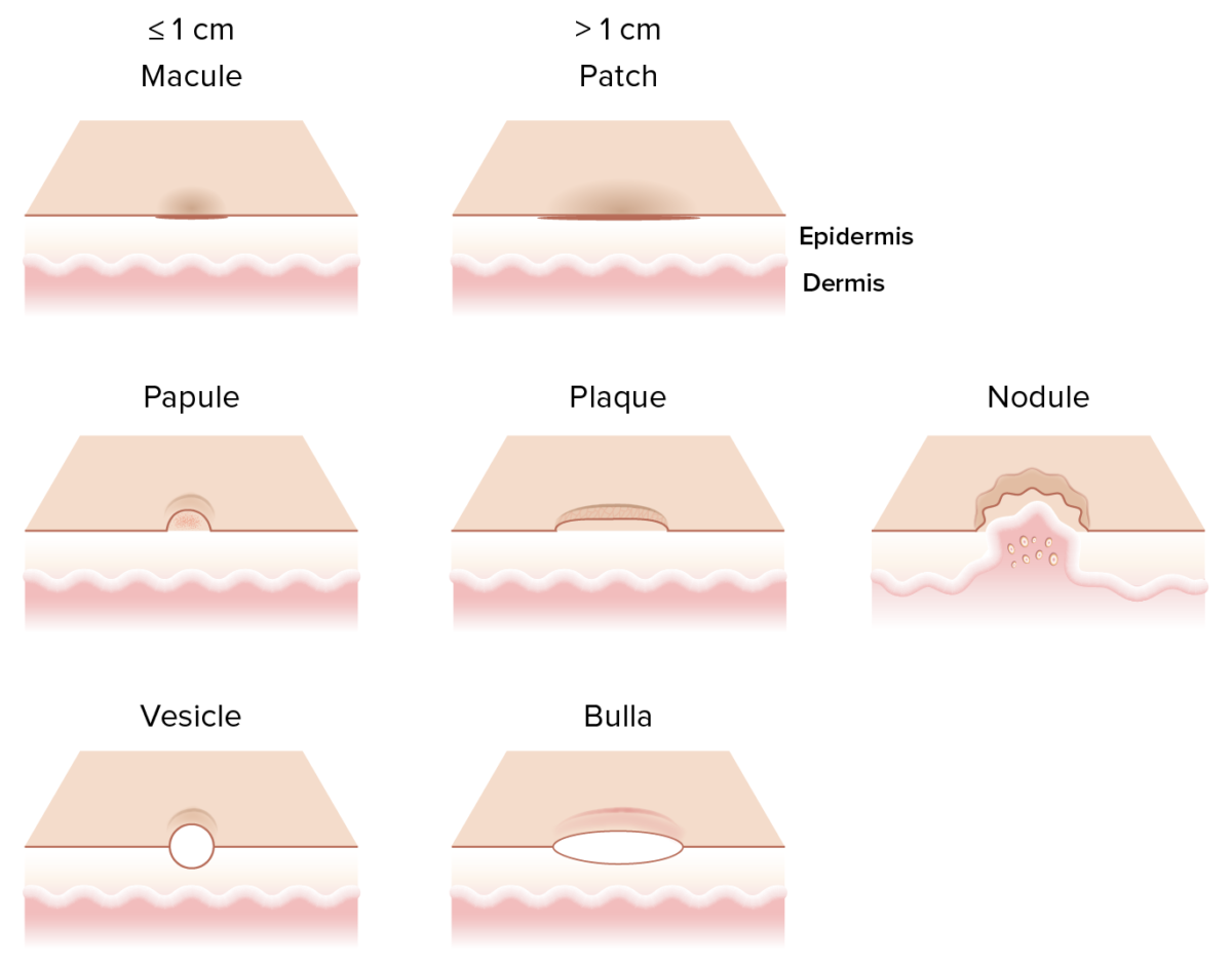 Primary skin lesions