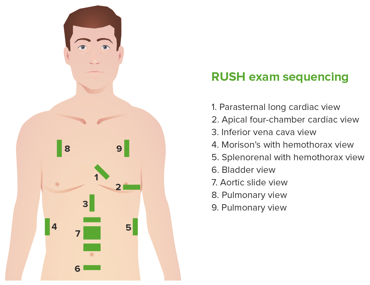 Probe placement for the RUSH exam-01