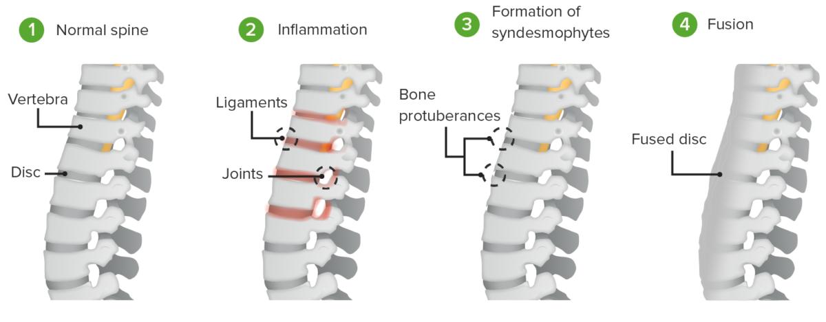 Process of ankylosis