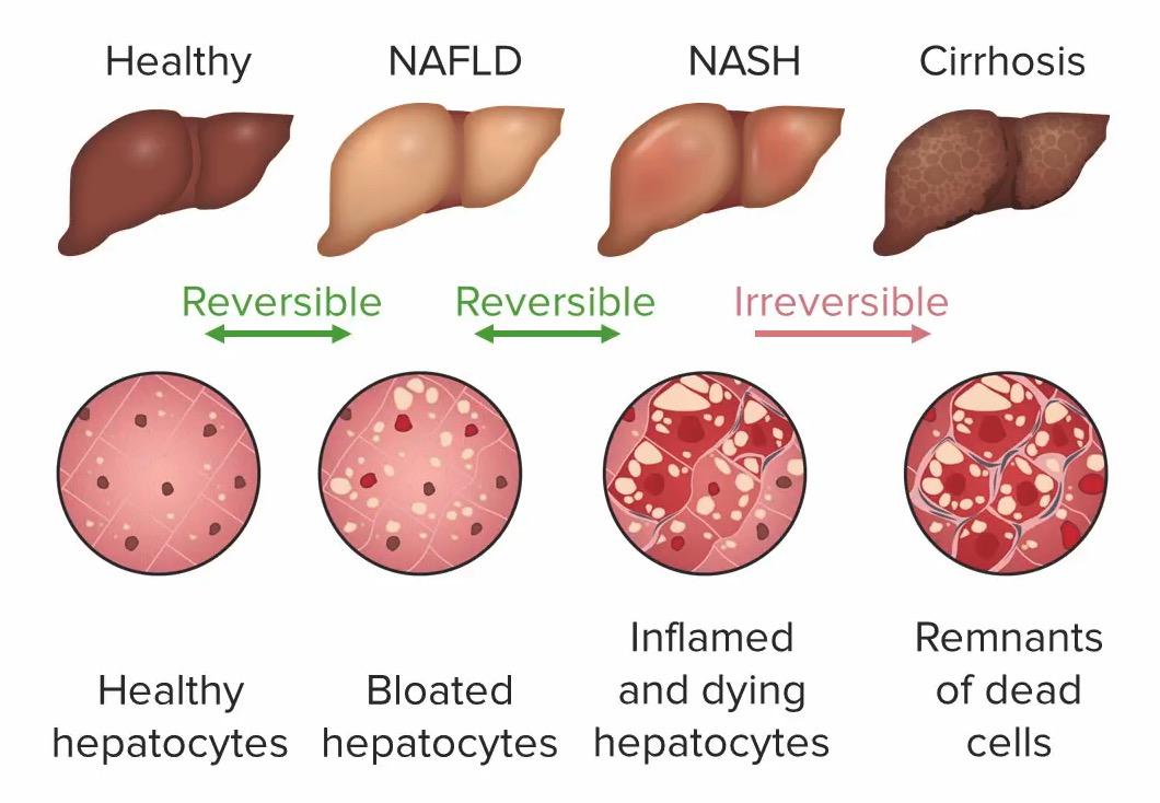 Progression of liver disease