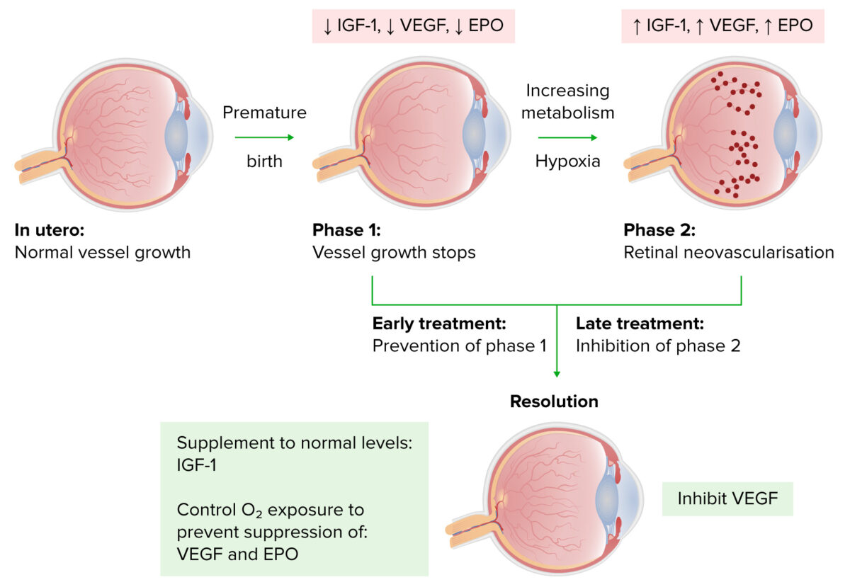 Progression of retinopathy of prematurity