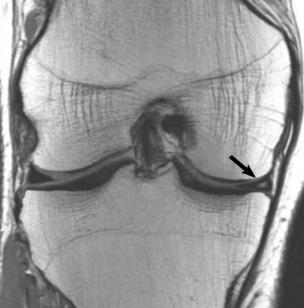 Proton density MRI in a coronal plane of the knee