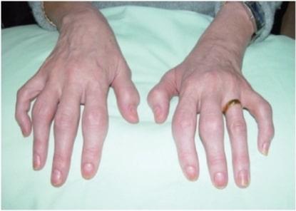 Psoriatic arthritis fingers