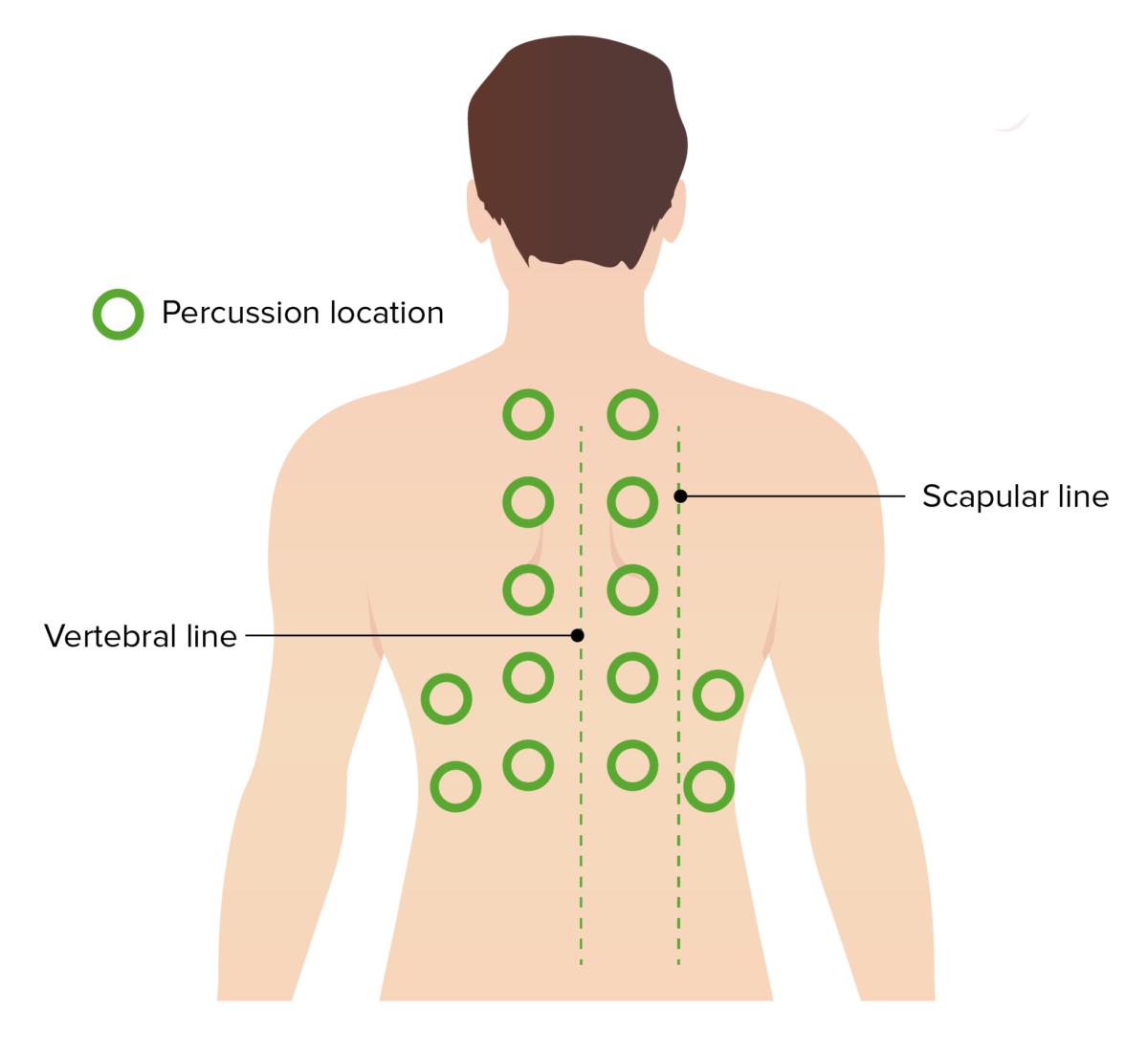 Pulmonary Exam - Percussion