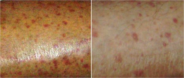 Purpuric skin rash Vasculitides