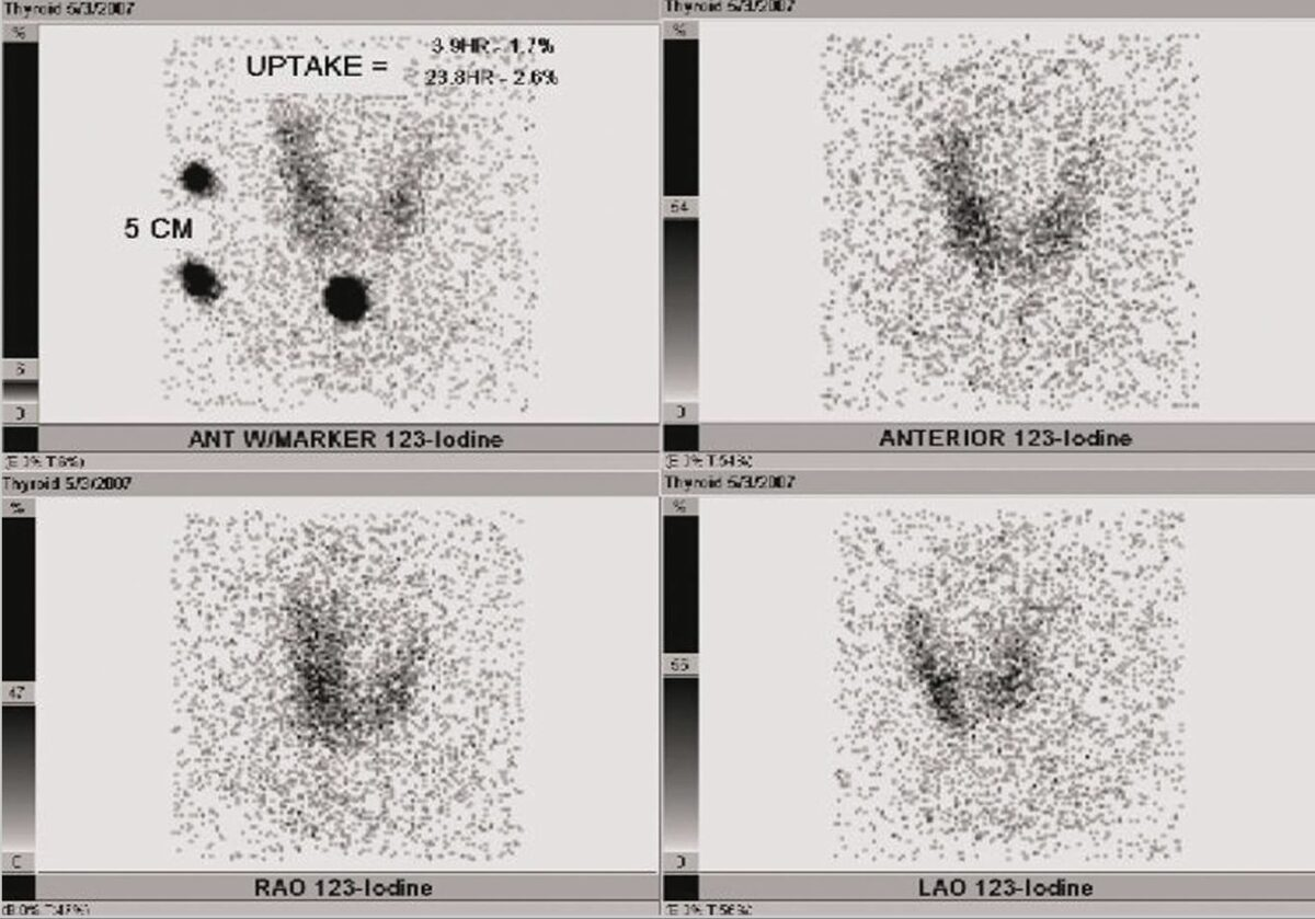 Radioactive iodine uptake (RAIU) of the thyroid
