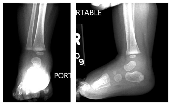 Radiograph septic arthritis in infant