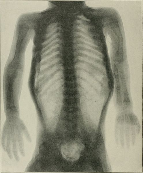 Radiograph showing osteogenesis imperfecta