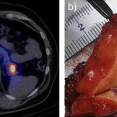 Radiographic and surgical findings insulinoma