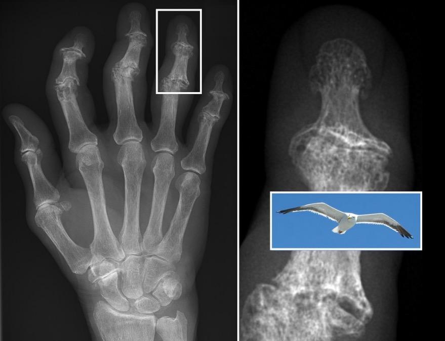 Radiographic features of erosive osteoarthritis