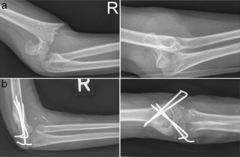 Radiographs of supracondylar fractures