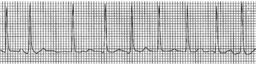 Rapid ventricular rate