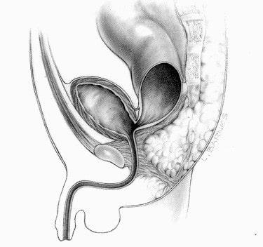 Rectobladder neck fistula