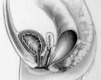 Rectovestibular fistula in females