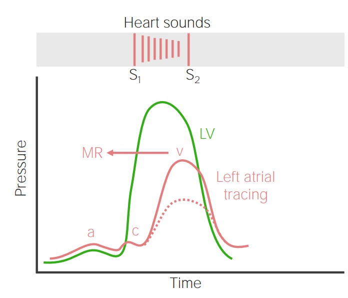 Relationship between left and right ventricular pressure - mitral regurgitation