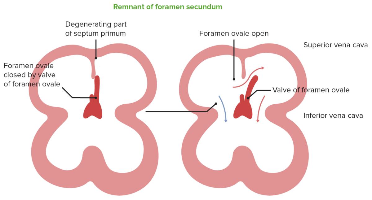 Remnant of foramen secundum