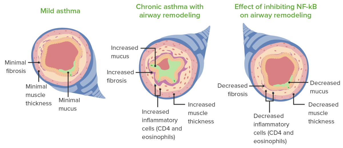 Remodelling and pathological changes noted in asthma