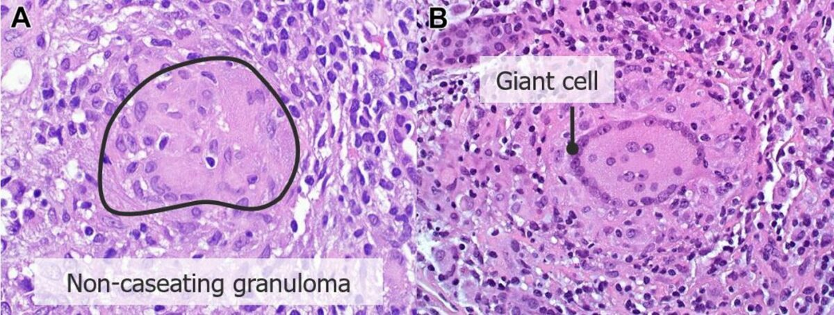 Renal biopsy findings consistent with sarcoidosis