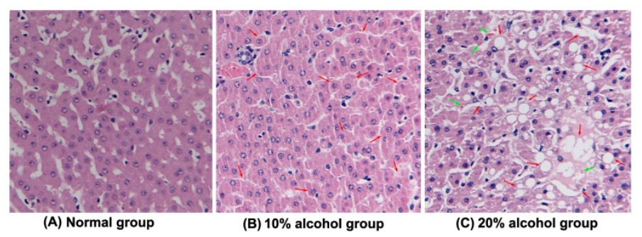 Representative histological feature of liver sections ALD