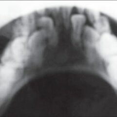 Retention of primary dentition X-ray