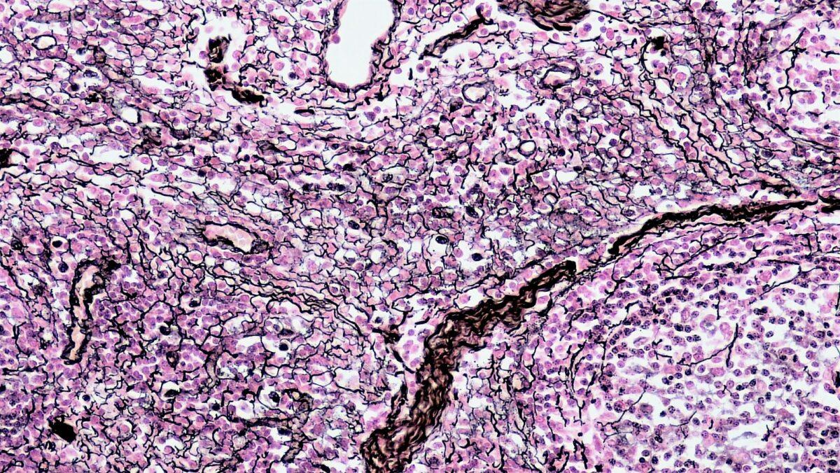 Reticular connective tissue