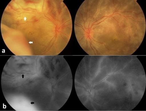 Retinal detachment in Behçet's disease