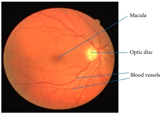Retinal image
