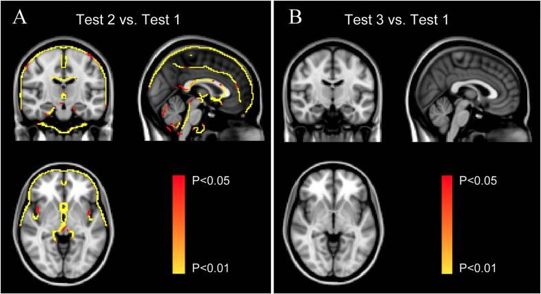 Reversible Brain Abnormalities in People Without Signs of Mountain Sickness During High-Altitude Exposure